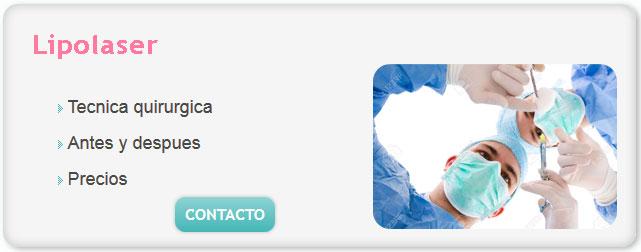 lipolaser costo, lipo laser, lipotransferencia, lipo escultura, la liposuccion, liposucciones, liposucción sin cirugía, lipoescultura sin cirugia, costo de liposuccion,