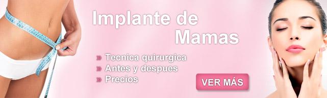 mastopexia precio, levantamiento de mamas, operaciones de mamas, pexia, costo cirugia de senos, precio de cirugia de senos, operacion de senos precio, cirujia mamaria,